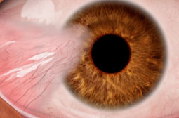 Pterygium Surgery Somerset West Cape Town